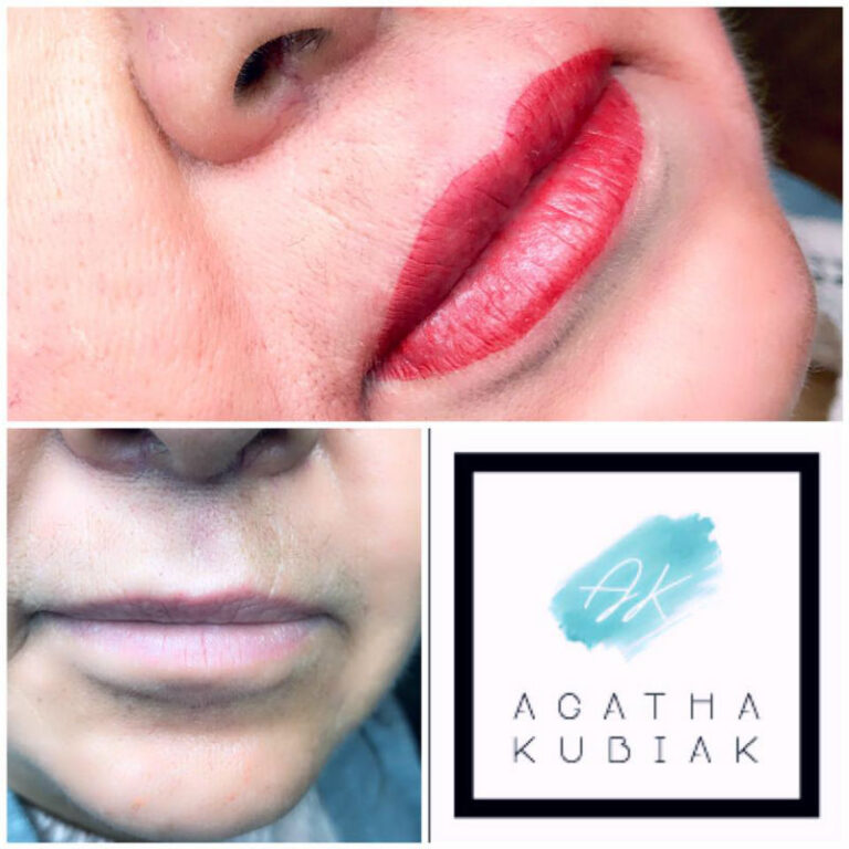 Chicago Permanent Lips - Before and After