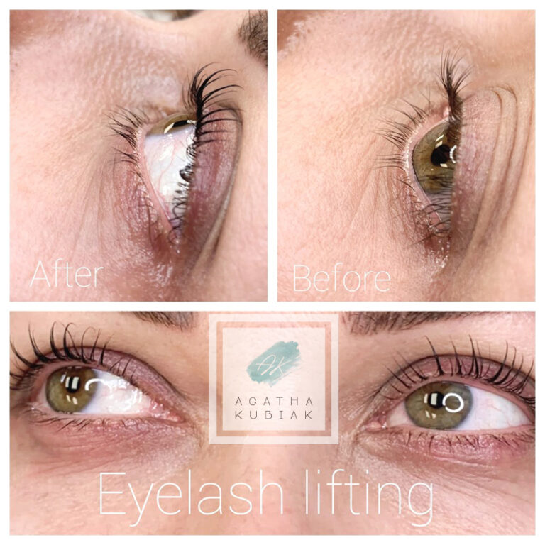 Chicago Eyelash Lifting - Before and After