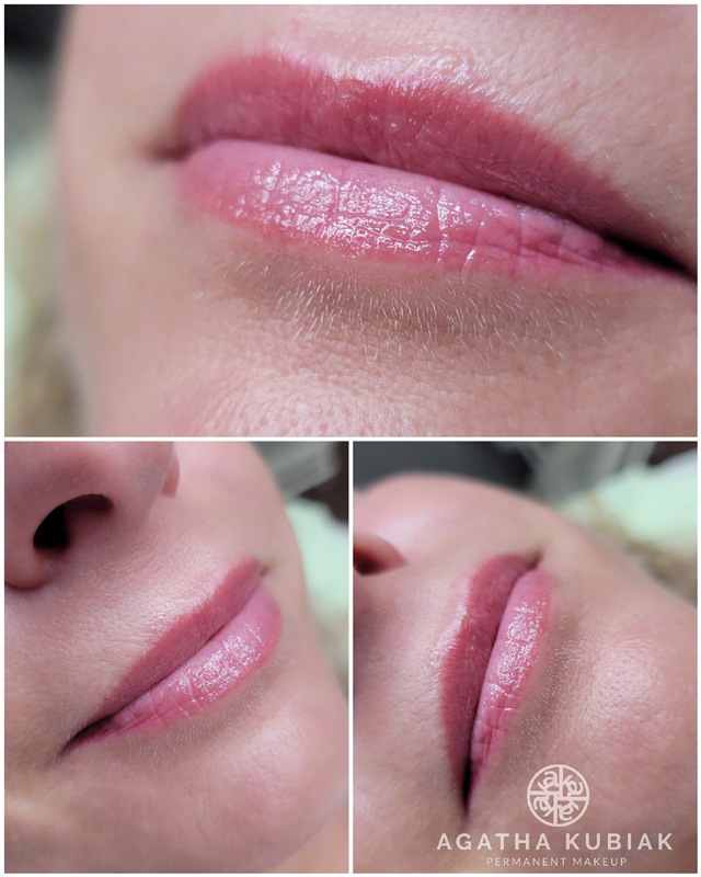 Healed lips 10 months after the procedure